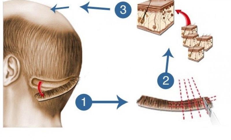 greffe de cheveux technique
