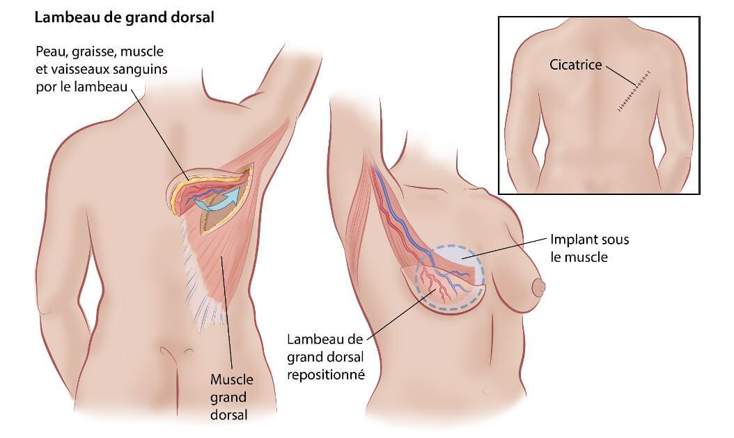 reconstruction mammaire Genève